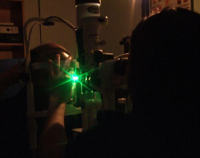 Лазер аргоновый