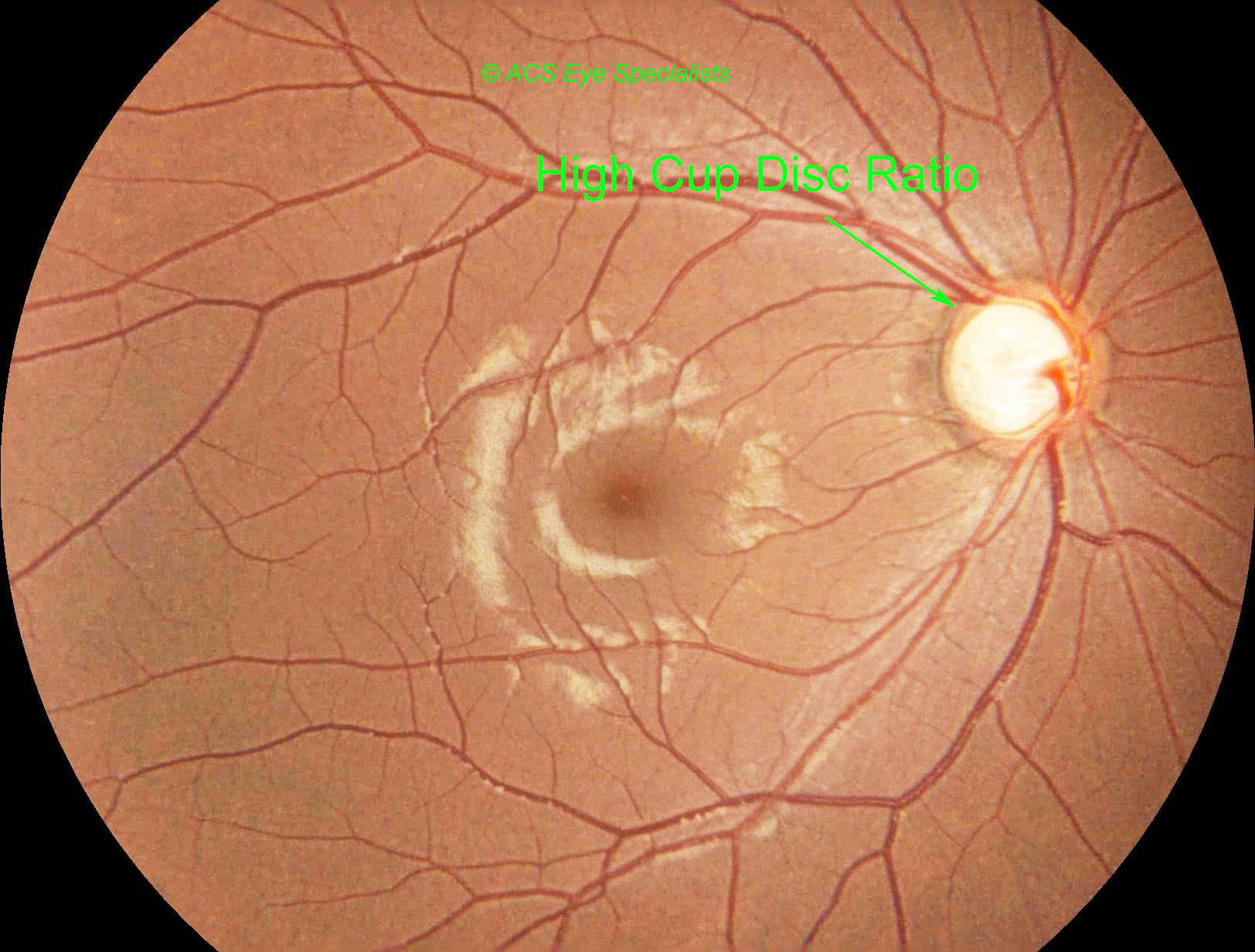 Glaucoma - ACS Eye Specialists - glaucoma screening, treatment with